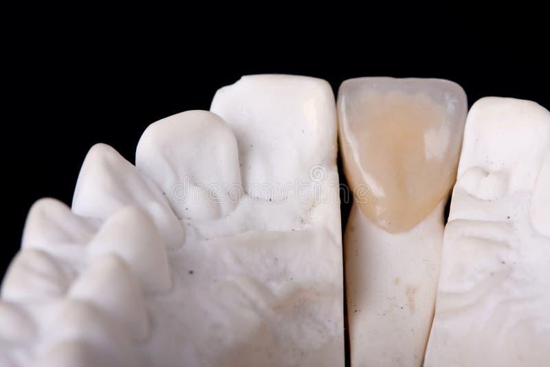 Modello dentale della cera del particolare fotografia stock libera da diritti