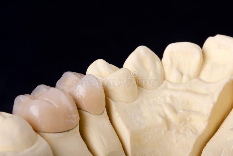 Modello dentale della cera del particolare fotografie stock libere da diritti