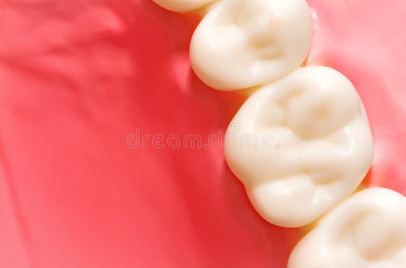Modello dentario fotografia stock libera da diritti