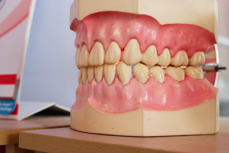 Modello dentario dei denti su una tavola di legno immagini stock