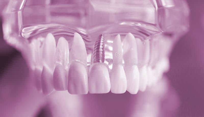 Modello dentario della bocca dei denti immagini stock