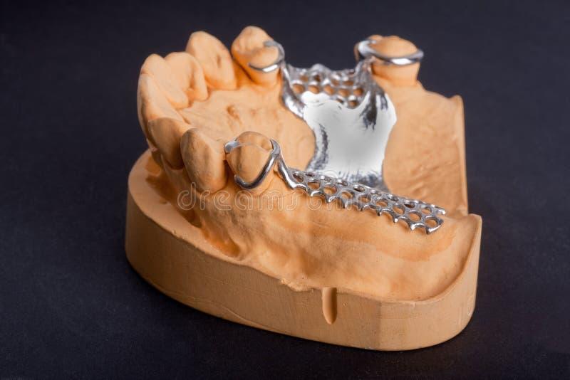 Modello dentario della cera fotografie stock libere da diritti