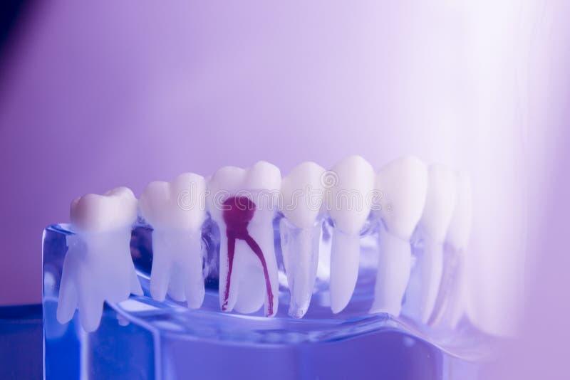 Modello dentario di odontoiatria dei denti immagine stock libera da diritti