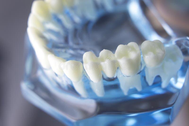 Modello dentario di odontoiatria dei denti fotografia stock libera da diritti
