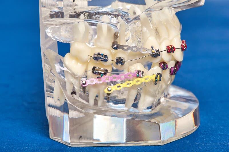 Modello dentario ortodontico dei denti umani con gli impianti, ganci dentari fotografia stock