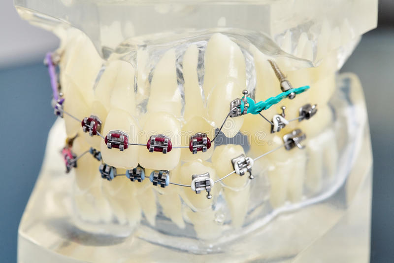 Modello dentario ortodontico dei denti umani con gli impianti, ganci dentari immagini stock