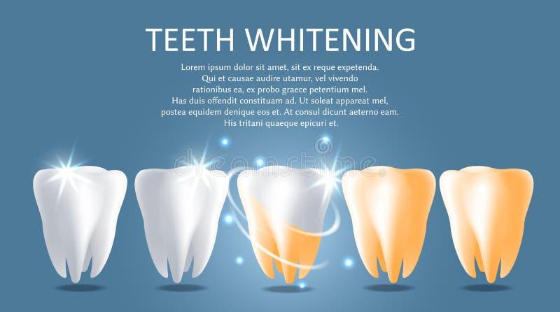 Modello di banner per il poster medico del vettore di sbiancamento dei denti illustrazione di stock