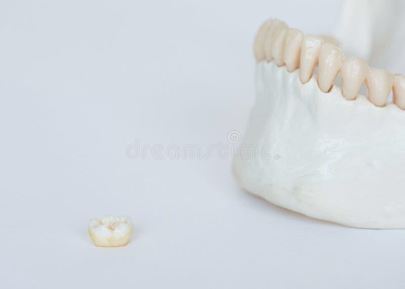 Modello molare dell'osso della mandibola e del dente su fondo bianco immagine stock
