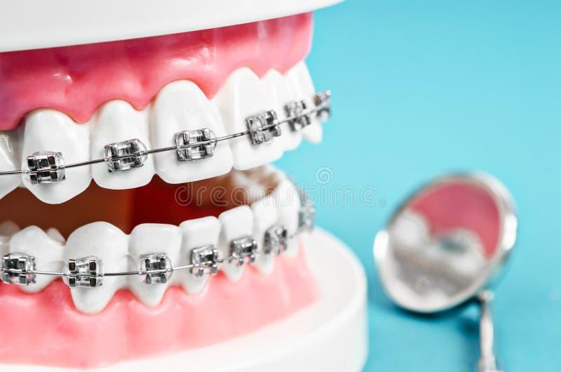 Modelo ascendente cercano del diente con los apoyos dentales del alambre de metal fotos de archivo libres de regalías