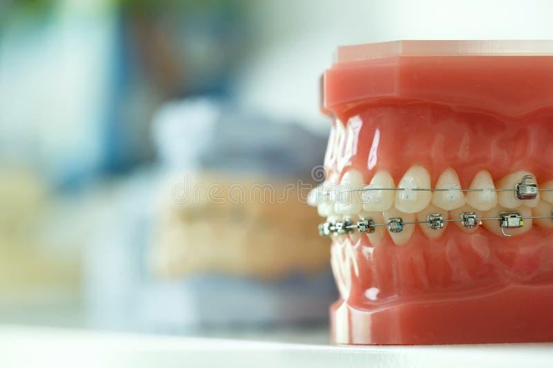 Modelo da maxila humana com as cintas do fio unidas fotos de stock