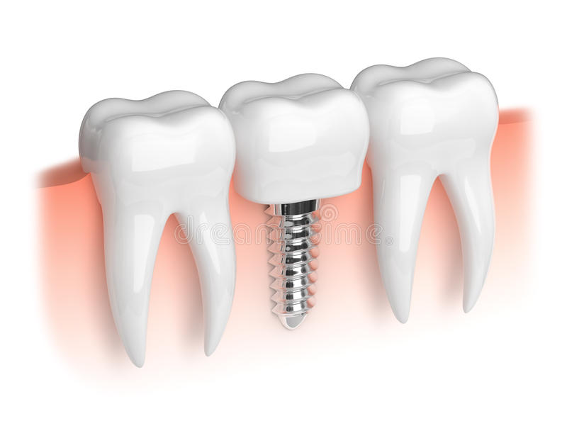 Modelo de dientes y del implante dental libre illustration