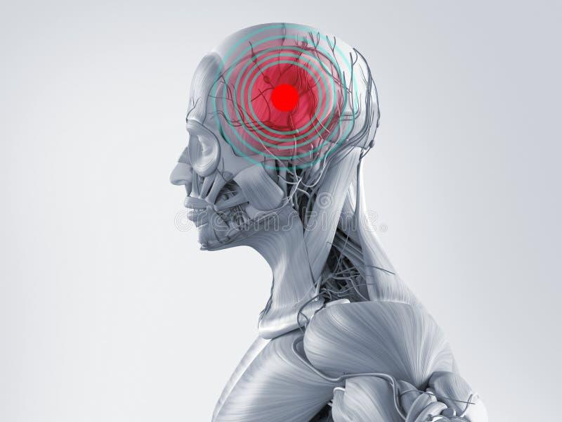 Modelo de la anatomía que muestra un dolor de cabeza Punto rojo y círculos concéntricos en el área del dolor ilustración del vector