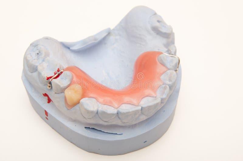 Modelo de la mandíbula fotografía de archivo libre de regalías