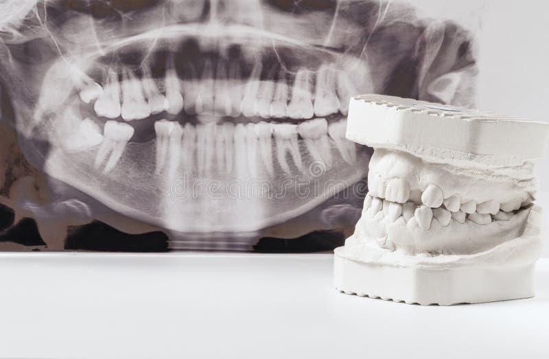 Modelo de moldação dental da gipsita das maxilas humanas com raio X dental panorâmico Dentes curvados e mordida longe do ponto de imagem de stock royalty free