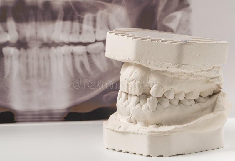 Modelo de moldação dental da gipsita das maxilas humanas com raio X dental panorâmico Dentes curvados e mordida longe do ponto de foto de stock