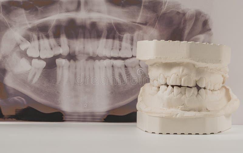 Modelo de moldação dental da gipsita das maxilas humanas com raio X dental panorâmico Dentes curvados e mordida longe do ponto de fotografia de stock royalty free
