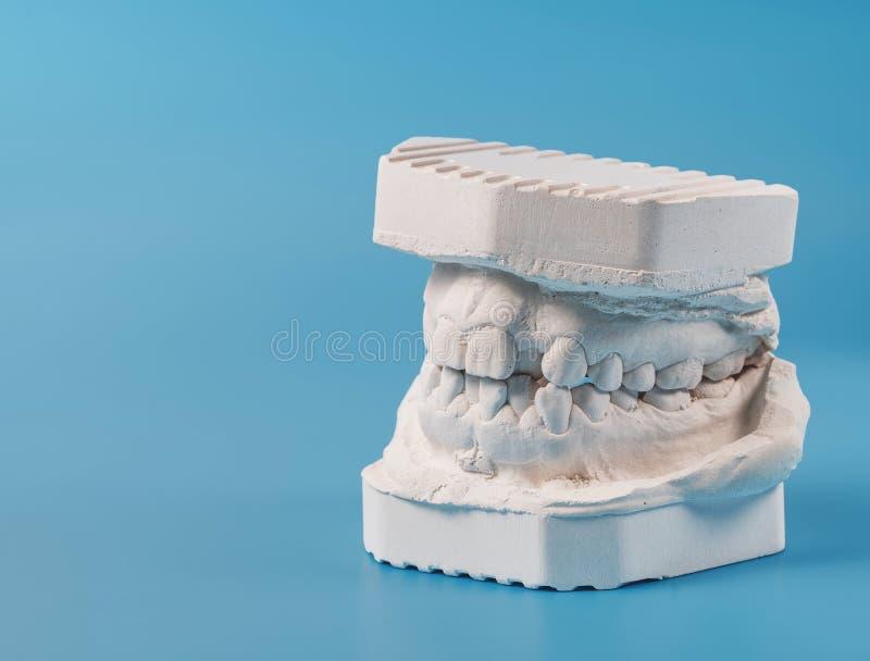 Modelo de moldação dental da gipsita das maxilas humanas Dentes curvados e mordida longe do ponto de origem Os tiros foram feitos imagens de stock