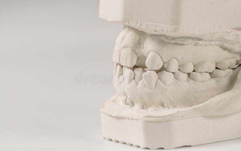 Modelo de moldação dental da gipsita das maxilas humanas Dentes curvados e mordida longe do ponto de origem Os tiros foram feitos fotos de stock