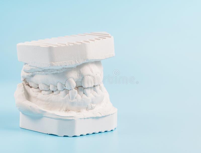 Modelo de moldação dental da gipsita das maxilas humanas Dentes curvados e mordida longe do ponto de origem Os tiros foram feitos imagem de stock