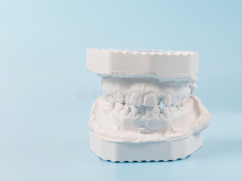 Modelo de moldação dental da gipsita das maxilas humanas Dentes curvados e mordida longe do ponto de origem Os tiros foram feitos foto de stock