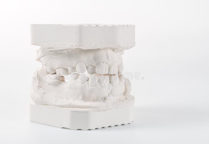 Modelo de moldação dental da gipsita das maxilas humanas Dentes curvados e mordida longe do ponto de origem Os tiros foram feitos fotografia de stock