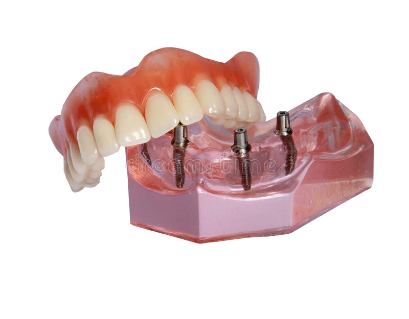 Modelo de un mandíbula y de una dentadura 2 fotos de archivo libres de regalías