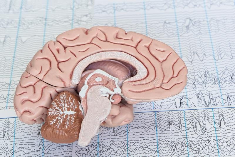 Modelo del cerebro humano en el fondo de las ondas cerebrales foto de archivo libre de regalías