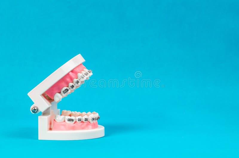 Modelo del diente con los apoyos dentales del alambre de metal fotografía de archivo