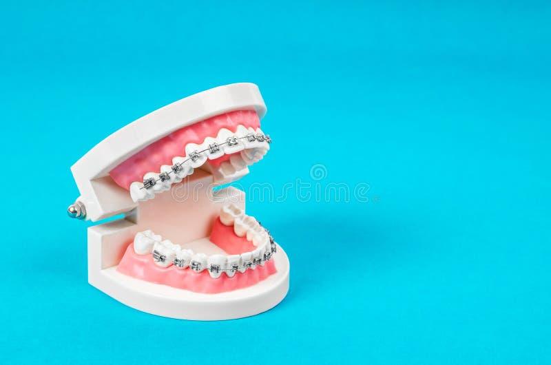 Modelo del diente con los apoyos dentales del alambre de metal fotos de archivo libres de regalías