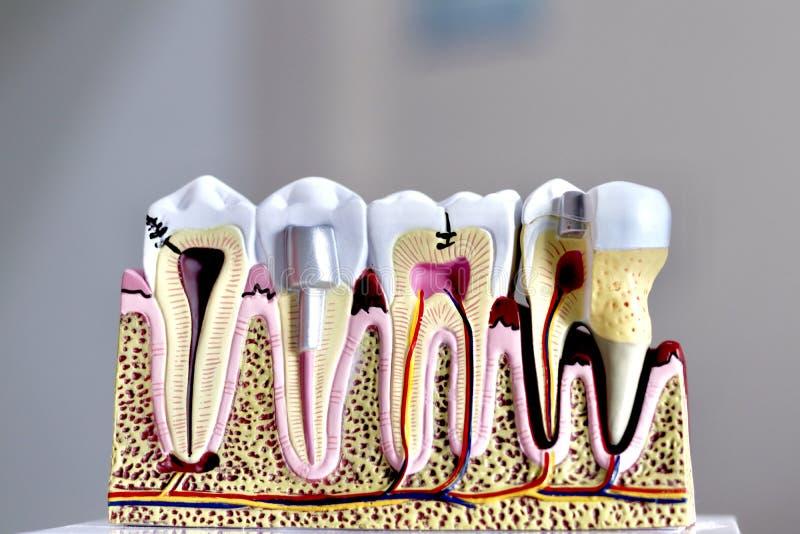Modelo del diente imágenes de archivo libres de regalías