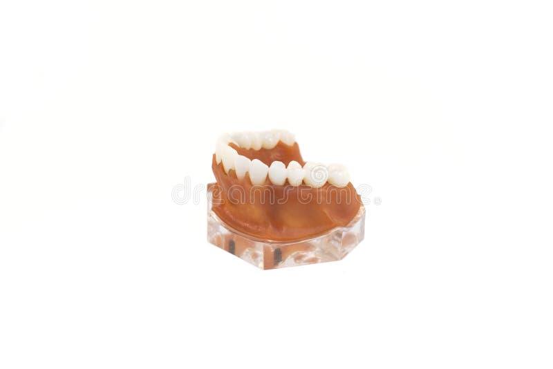 Modelo del mandíbula con implantado fotografía de archivo