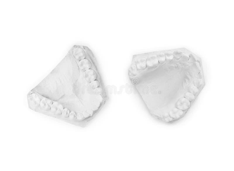 Modelo del yeso del mandíbula humano foto de archivo libre de regalías