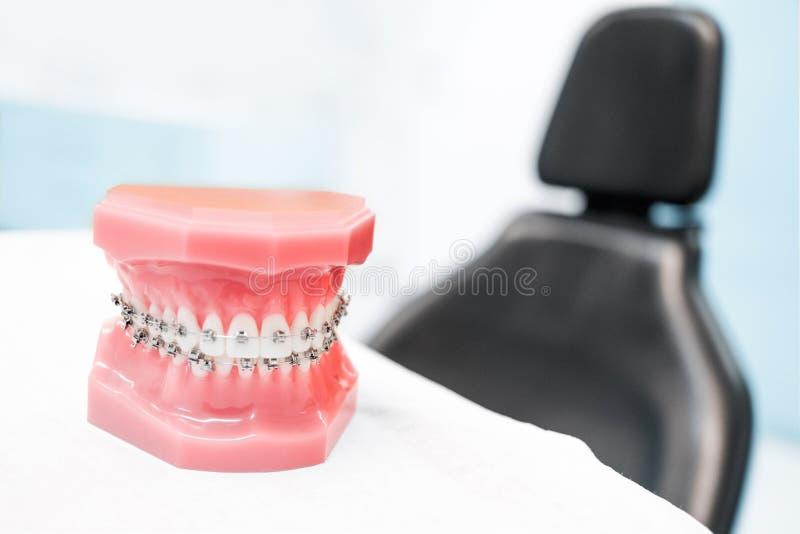 Modelo dental con los apoyos - en clínica o la ortodoncia del dentista imagenes de archivo