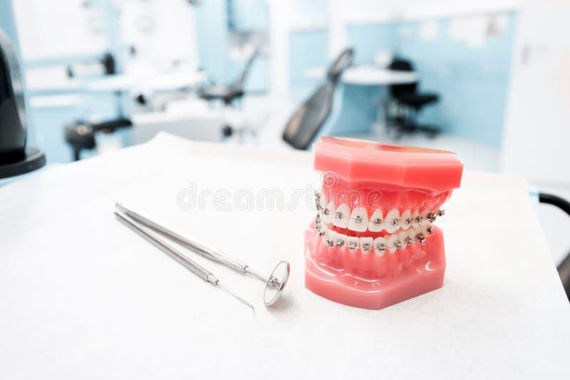Modelo dental con los apoyos - modelo dental ortodóntico de los dientes con los apoyos dentales en clínica del dentista imagen de archivo libre de regalías