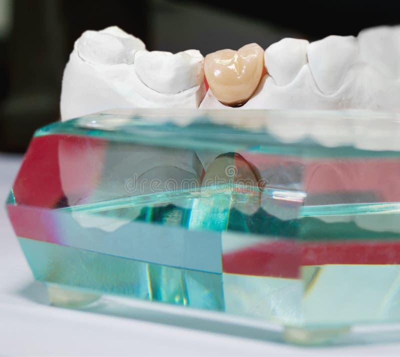Modelo dental da gipsita com o prisma cerâmico do dente e do vidro imagem de stock royalty free