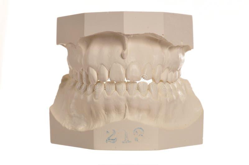 Modelo dental de dientes humanos en blanco fotografía de archivo