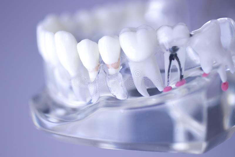Modelo dental de la boca de los dientes imágenes de archivo libres de regalías