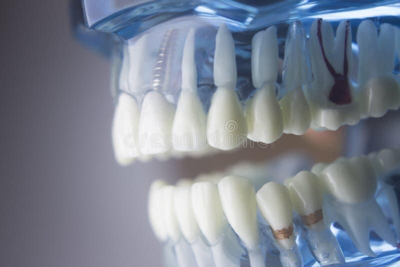 Modelo dental de la odontología de los dientes foto de archivo