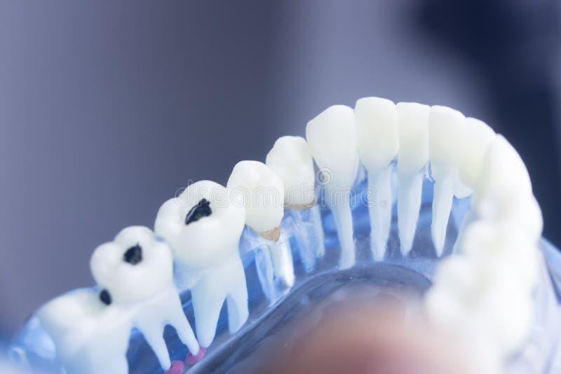 Modelo dental de la placa de la caries fotografía de archivo libre de regalías