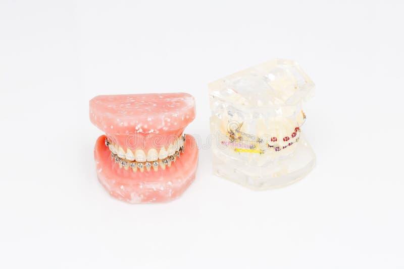 Modelo dental ortodôntico dos dentes humanos com implantes, cintas dentais foto de stock royalty free