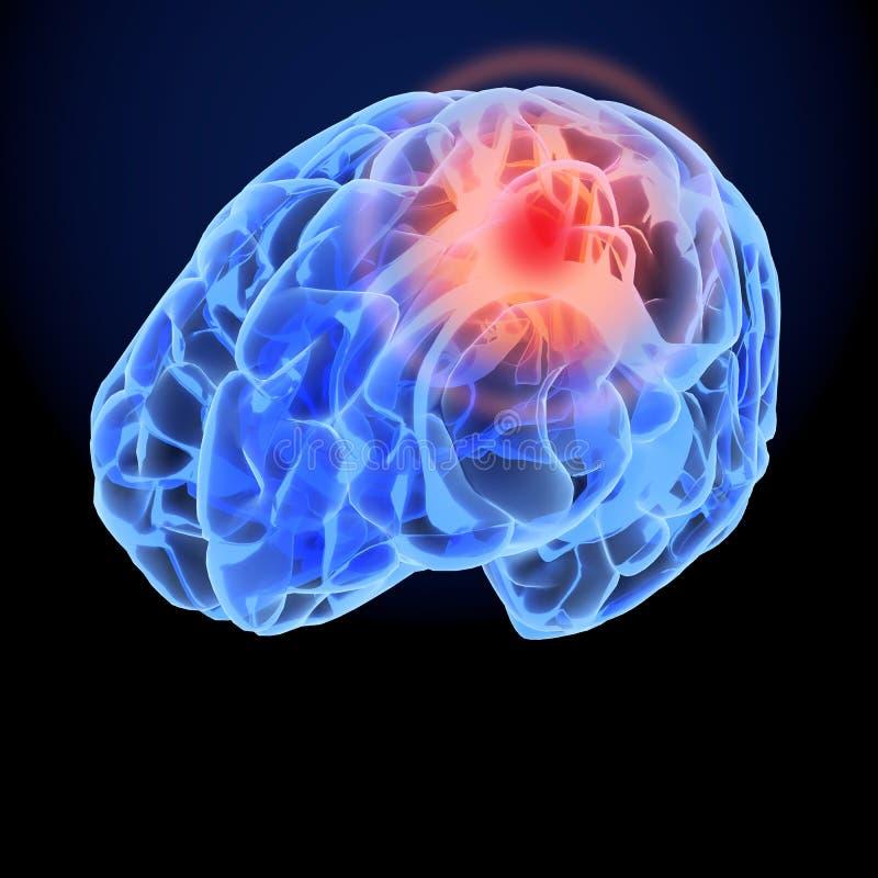 Modelo do raio X 3D da dor de cabeça Sinapse dos neurônios do cérebro, corpo da anatomia Ilustração médica da doença, dor princip ilustração stock
