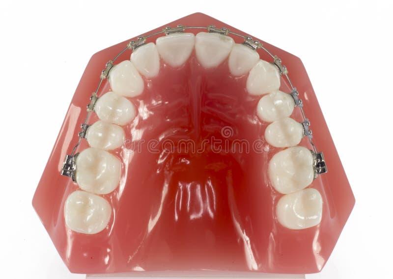 Modelo dos dentes com as cintas vistas da parte superior fotos de stock