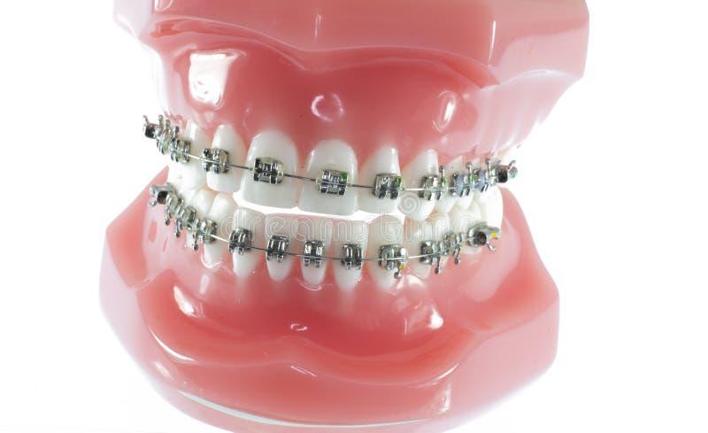 Modelo dos dentes com cintas foto de stock royalty free