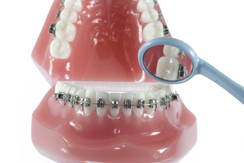 Modelo dos dentes com cintas e espelho fotografia de stock