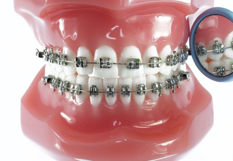 Modelo dos dentes com cintas e o espelho dental imagens de stock