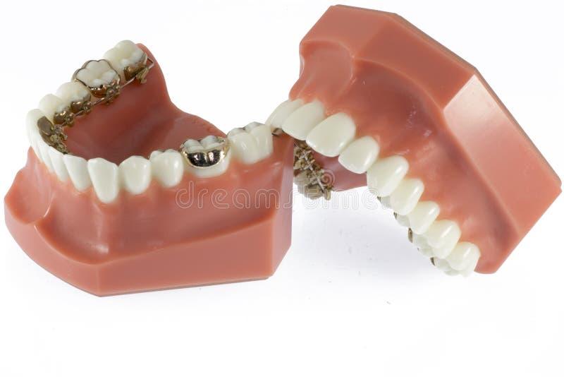 Modelo dos dentes com cintas relativas à língua imagem de stock
