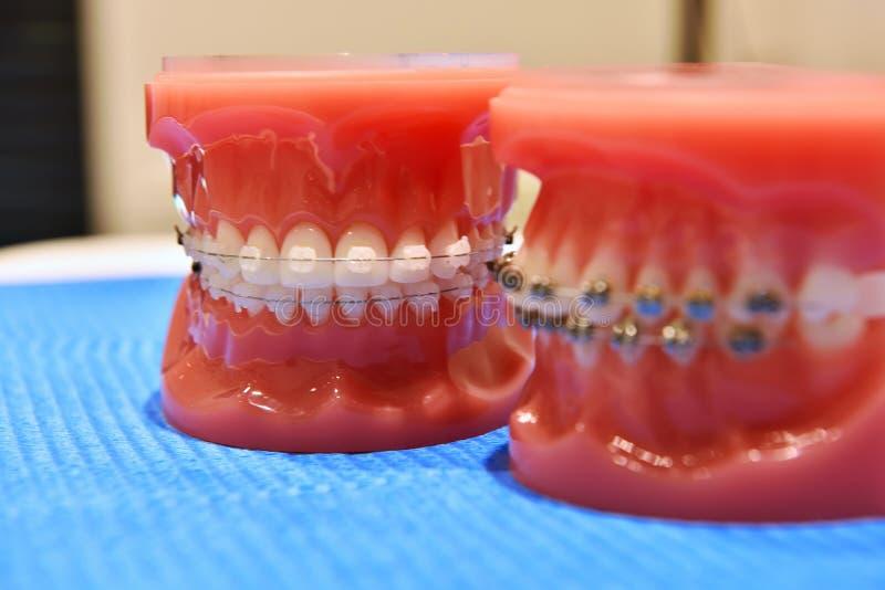 Modelo dos dentes de cintas ortodônticas fotografia de stock royalty free