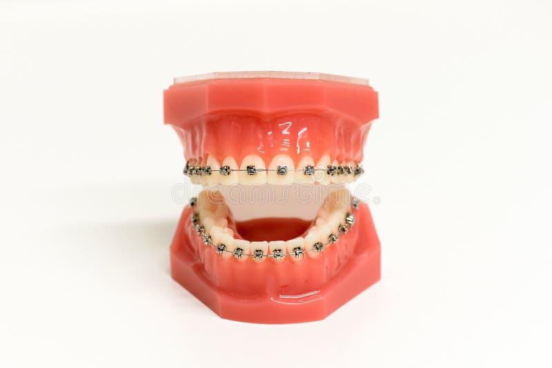 Modelo ortodóntico de dientes con los apoyos fotografía de archivo