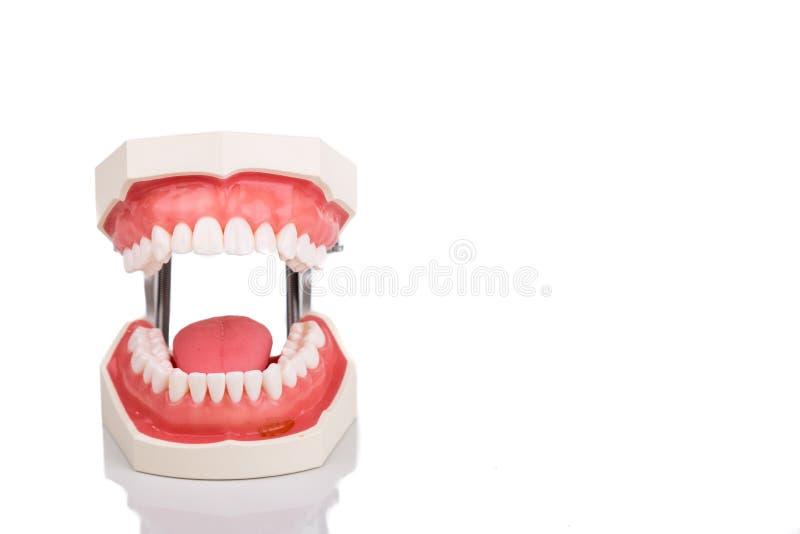 Modelo ortodôntico dos dentes do dentista com a maxila aberta fotos de stock royalty free