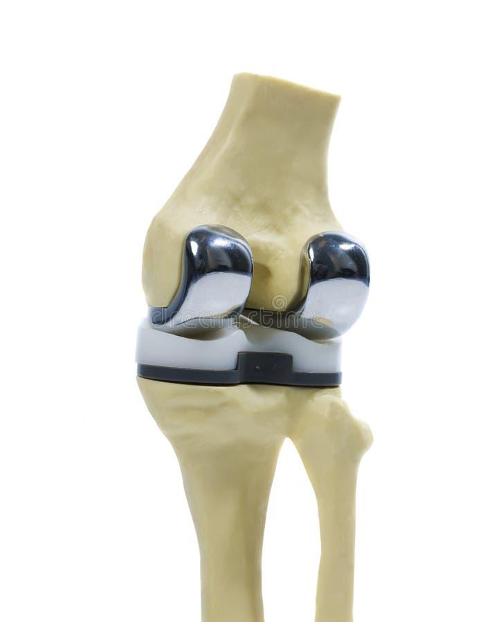 Modelo plástico de uma recolocação do joelho fotografia de stock royalty free